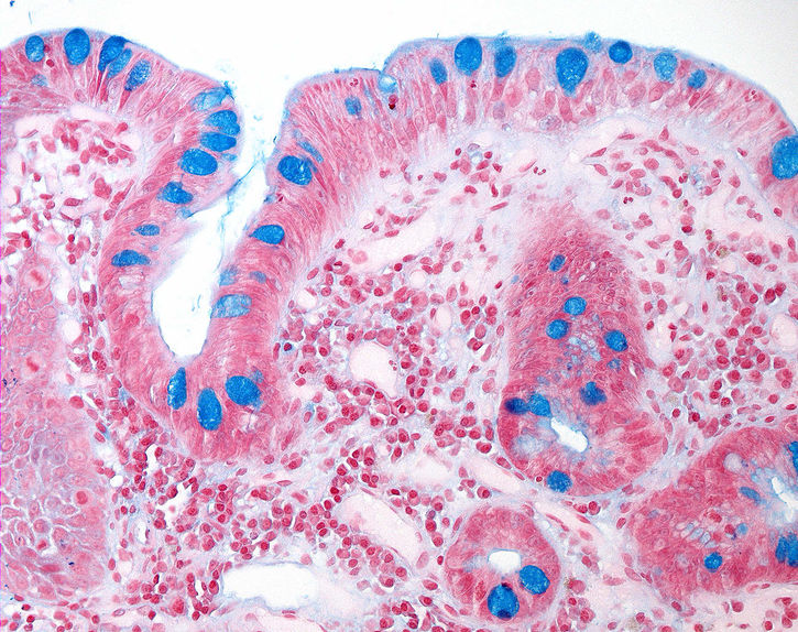 Intestinal metaplasia with goblet cells highlighted by alcian blue staining.jpg