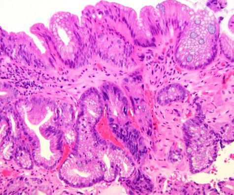 Basal crypt pattern dysplasia - Histological Definition.jpg