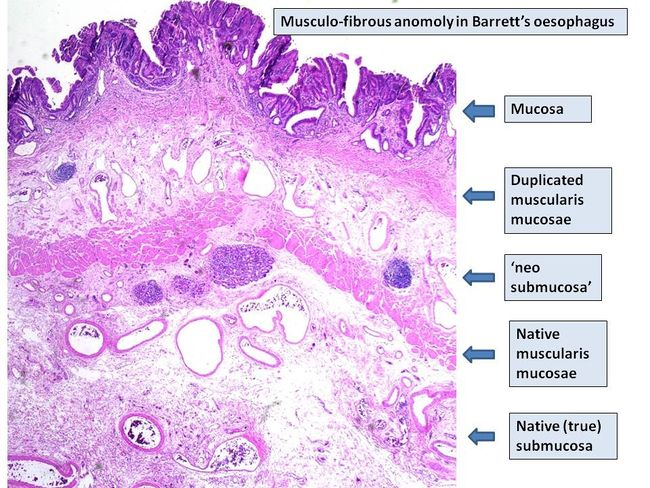 Musculo-fibrous anomoly in Barrett's Oesophagus - Histological features.jpg
