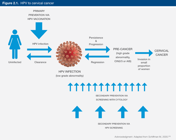 Figure2.1.HPV to cervical cancer.png