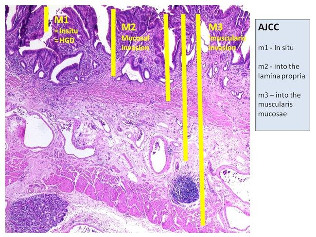 AJCC staging system (mucosa) - Histological features.jpg