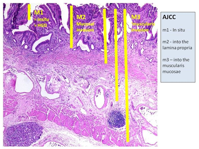 File:AJCC staging system (mucosa) - Histological features.jpg