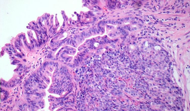 Solid and tight cribriform growth pattern diagnostic of intramucosal adenocarcinoma - Histological Features.jpg