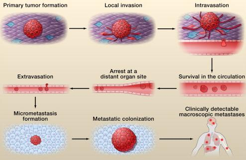 Steps involved in the metastatic cascade.jpg