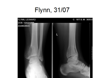 Aneurysmal bone cyst of ankle.png