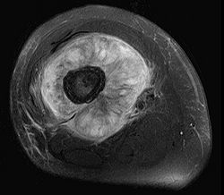 Osteosarcoma MRI scan in distal femur.jpg